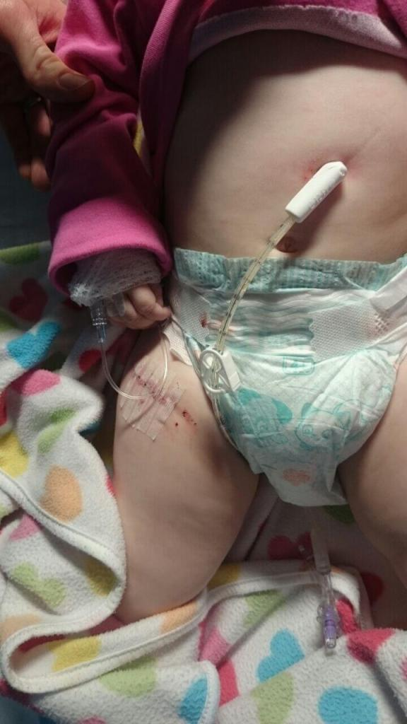PEG and muscle biopsy